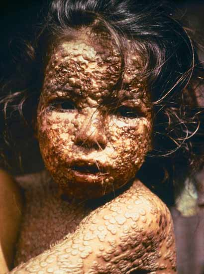 Child infected with smallpox. Bangladesh, 1973.