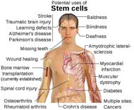 Stem Cell Treatment Uses
