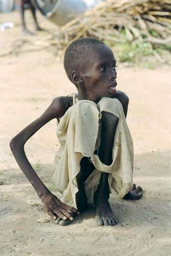 The Atrocity Exhibition  A War Fuelled by ImageryAfrican Children Starving Vulture