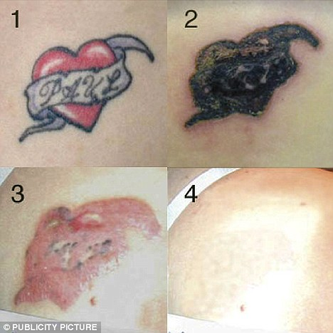 White Tattoo On Dark Skin. Unwanted Tattoos Can Be