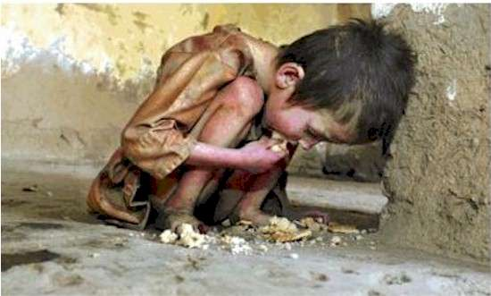 north korean people starving. can represent all starving